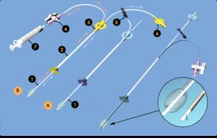 Изображение к товару Катетеры для гистеросальпинографии