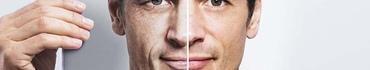Косметологические предпочтения мужчин – часть 1