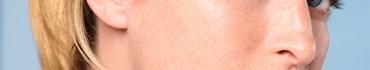 Антивозрастной уход за кожей лица в домашних условиях