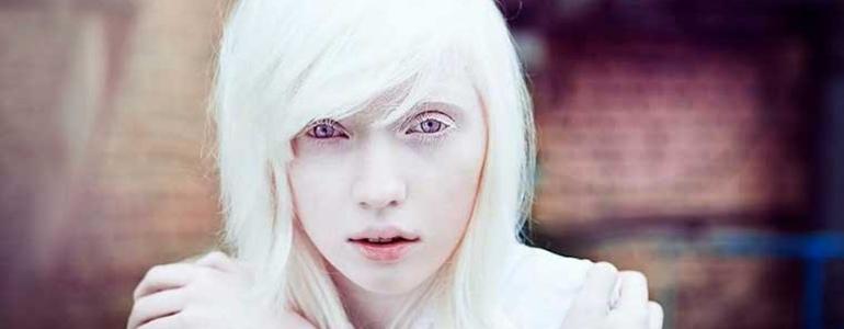 Изображение Альбинизм