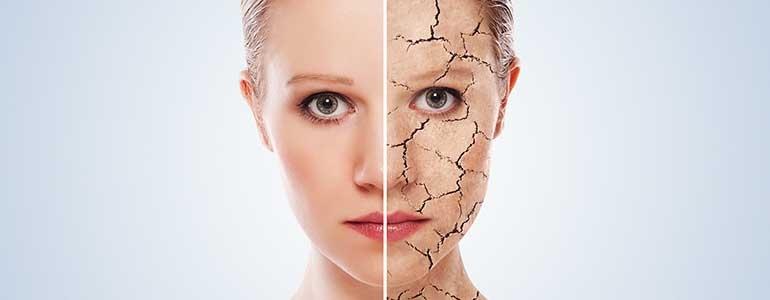 Изображение Уход за сухой кожей в зимний период