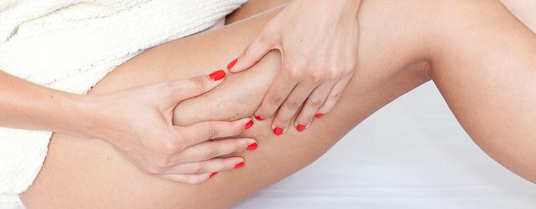 Изображение Лечение растяжек (стрий) на коже