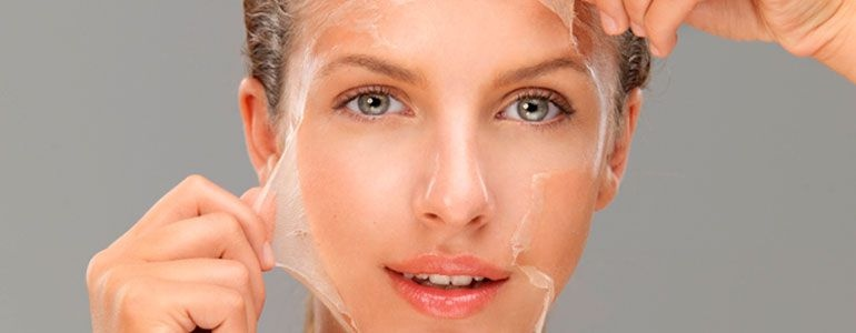 Изображение Услуги косметологии - Химический пилинг