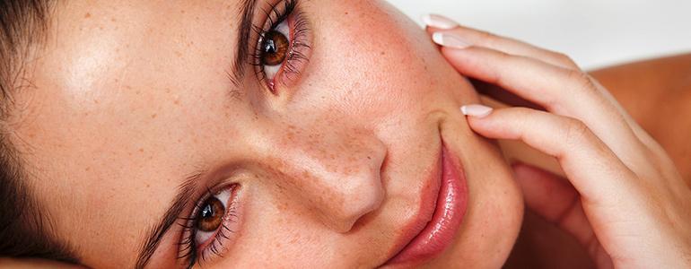 Изображение Как избавиться от жирного блеска кожи на лице в домашних условиях